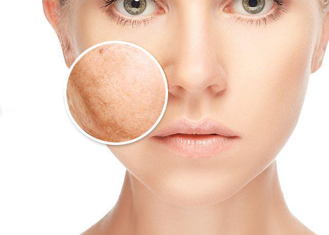 Lovt54- zabiegi pielęgnacyjne na twarz